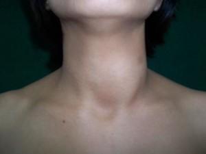 Thyroid4