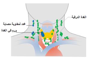 Thyroid CA